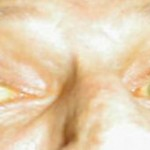 Jaundice, a yellowish appearance of the skin is a classical symptom of liver disease.