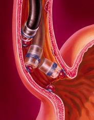 Ligadura de várices esofágicas